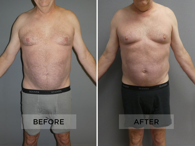 Sculpsure Patient B
