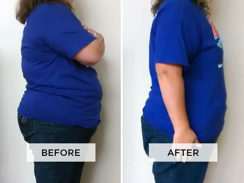 Weight Loss Patient E