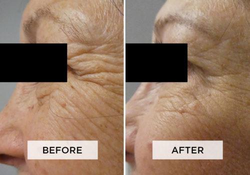 Botox Patient G