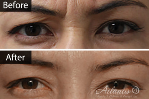 Botox-before-and-after-bl-1