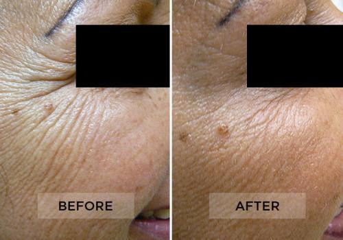 Botox Patient A