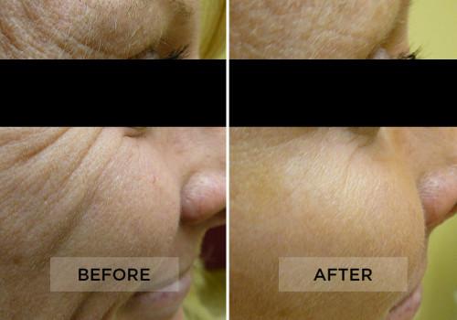 Botox Patient C
