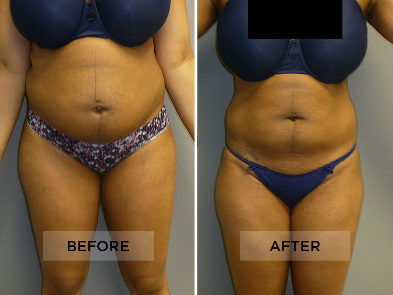 Sculpsure Patient A