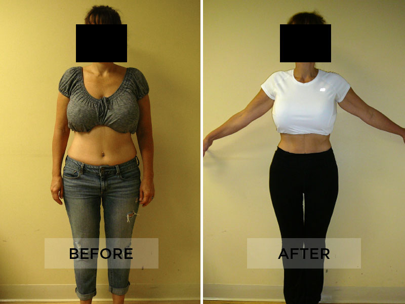 Weight Loss Patient A
