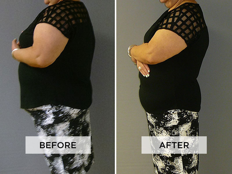 Weight Loss Patient D
